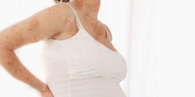 Bị thủy đậu lúc mang thai có sao không?